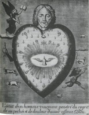1795A